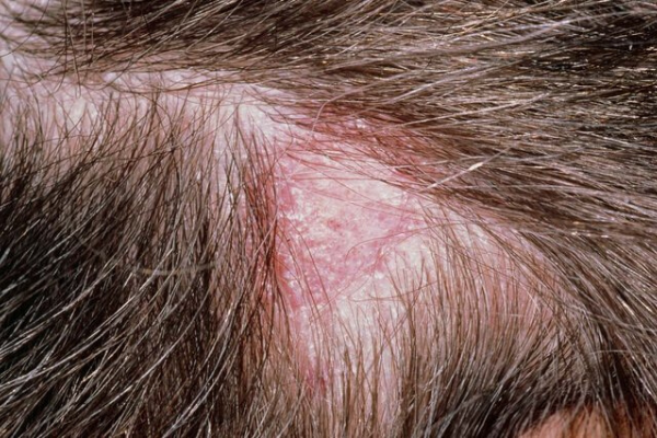 Scalp Infections Or Inflammation